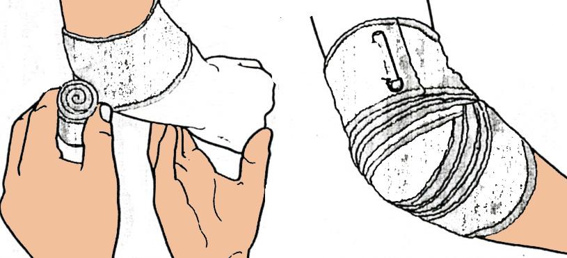 bandage-coude