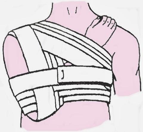 bandage-epaule