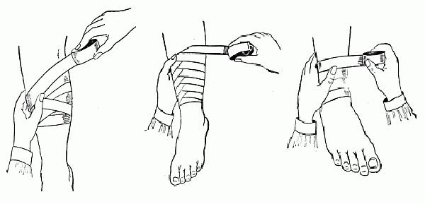 bandage-jambe