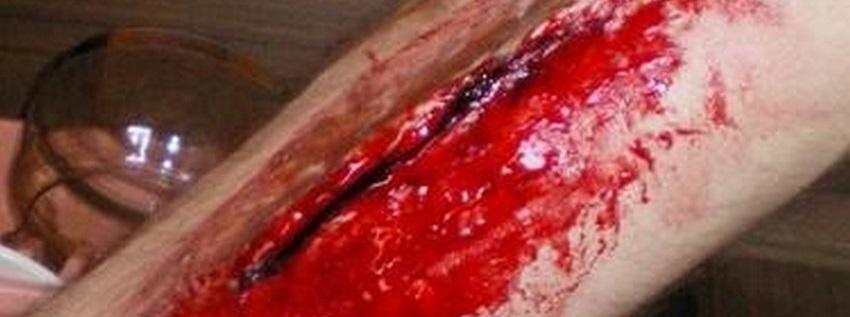 hemorragie