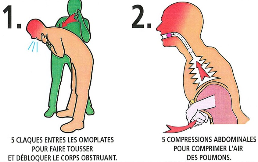 compression-tapage-adulte